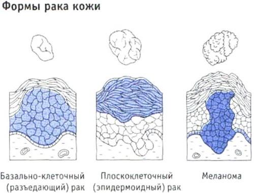Методы лечения базалиомы