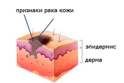 Облучение базалиомы