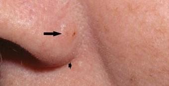 Базалиома носа