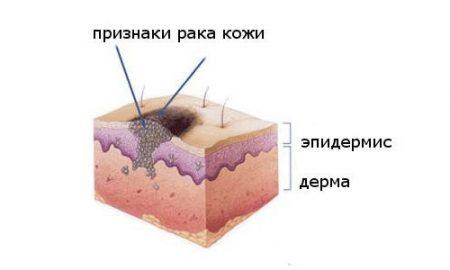 Метатипический рак кожи лечение